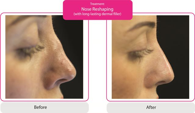 Nose Reshaping Fillers