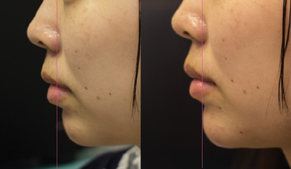 chin augmentation with fillers