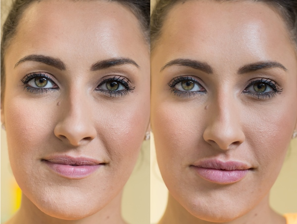 before and after lips Elissa