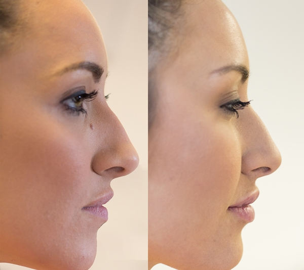 before and after lips side Elissa