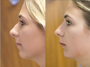 facial profile before and after