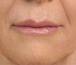 nose to mouth lines after