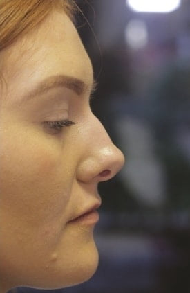 Before Nose Beautification