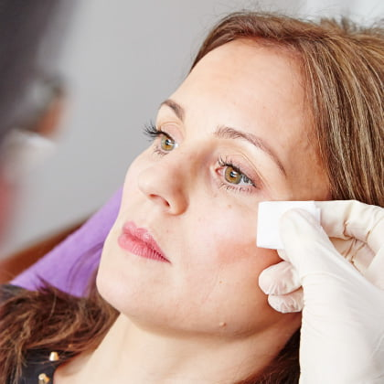 Treating your nose-to-mouth lines with dermal filler