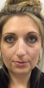 before fillers tear troughs