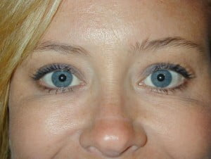 crows feet after botox