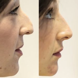 before and after facial profiling