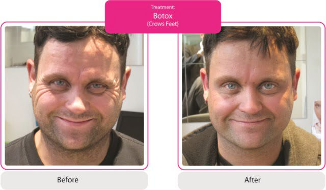 Before & After Pic Botox, Forehead, Frown & Crows - Sammi