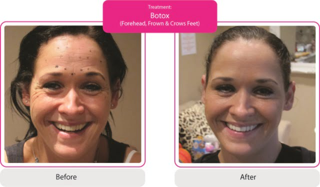 Before-and-After-Botox-Forehead-Frown-Crows