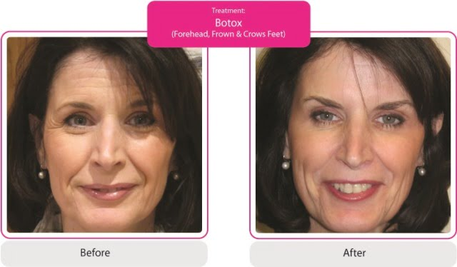 Before & After Botox, Forehead, Frown, Crows Feet