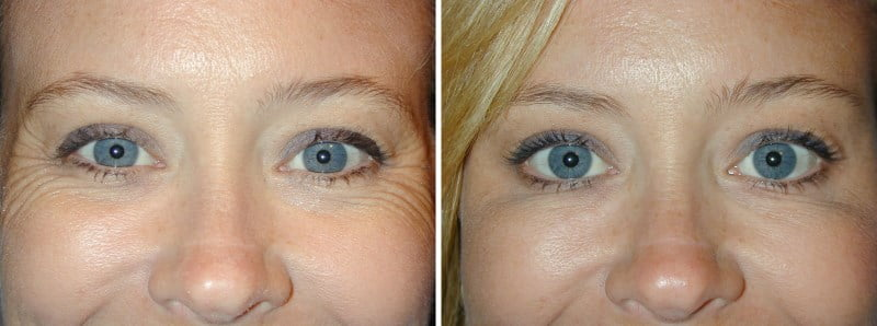 Botox for crows' feet