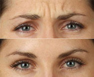 Botox for the frown lines
