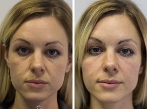 fillers real life airbrushing