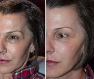 before and after temple hollows treatment