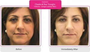 cheeks and tear troughs