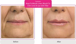 nose to mouth lines, mouth to chin & lips with filler