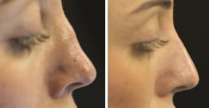 Nose Reshaping Dermal Filler