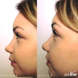 nose job fillers before and after