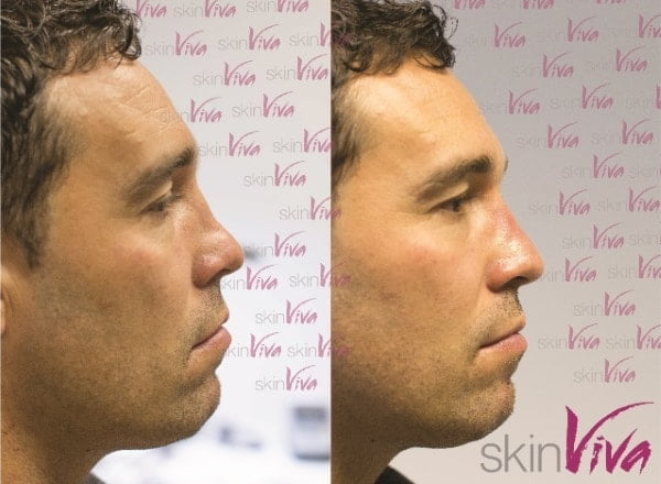 'Liquid rhinoplasty' - nose reshaping with dermal fillers