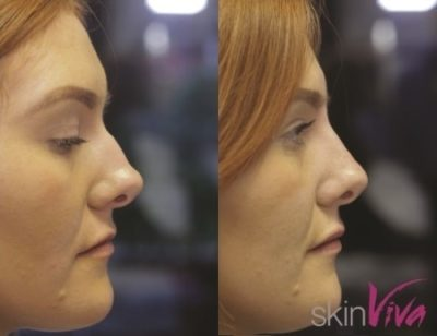Before and After Nose job - beautification results