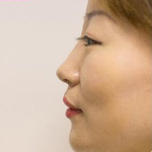 after asian rhinoplasty
