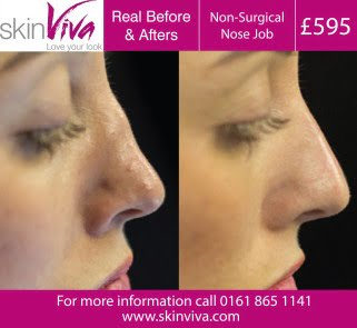 What Do Non Surgical Nose Jobs Cost Skinviva Manchester