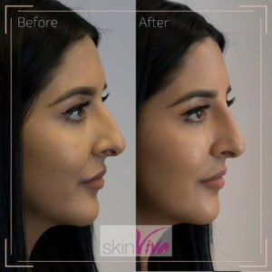 before-after-non-surgical-nose-job-blog