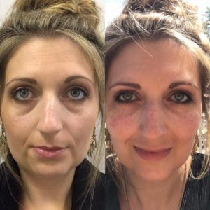 before and after fillers tear troughs