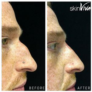 male rhino before after filler