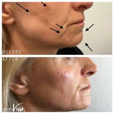 jawline filler before and after jowls