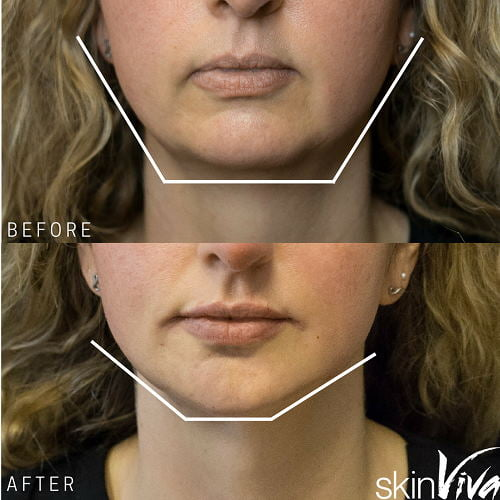 chin before after augmentation