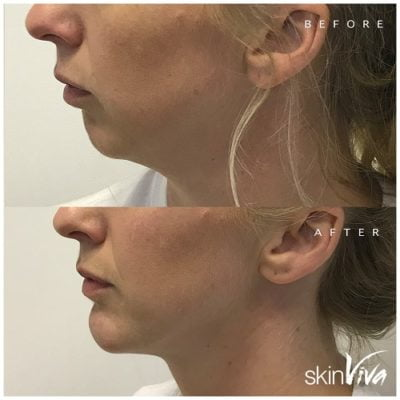before after chin augmentation
