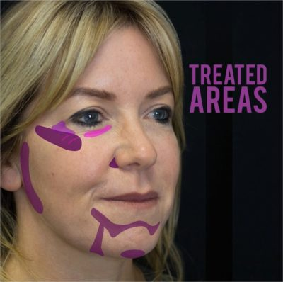 treated areas for fillers