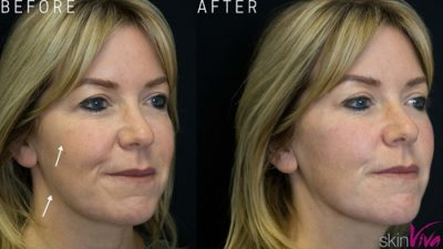 jawline cheek treatment before after fillers