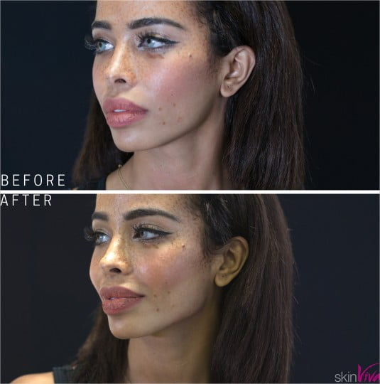 Dermal fillers for jawline contouring and re-shaping