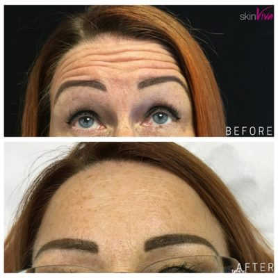 botox before after