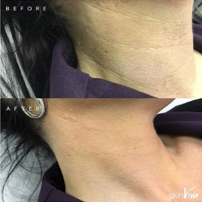 BOTOX® and/or dermal filler injections