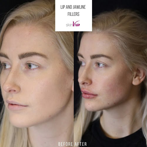 before after lip jawline fillers