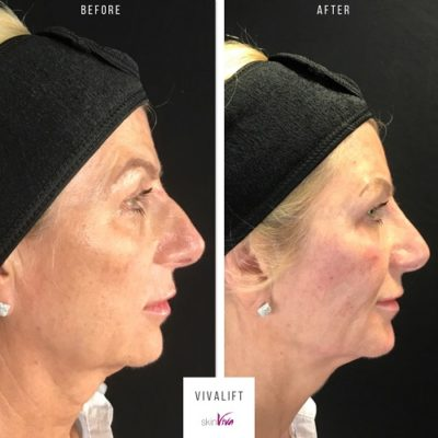 vivalift full side before and after