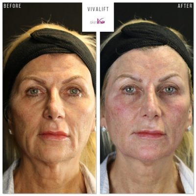 non-surgical face lift before and after