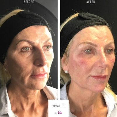 vivalift face lift result before after