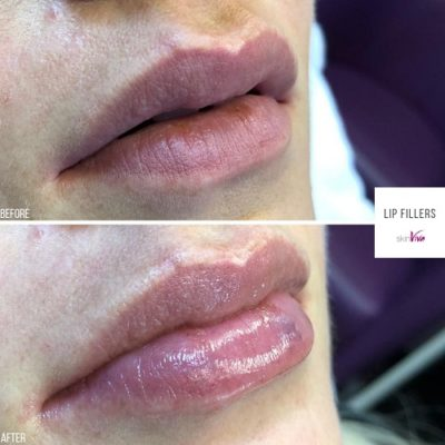 lip fillers hydrating