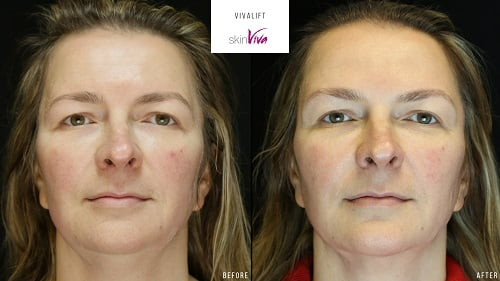 vivalift before and after results front
