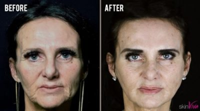 diane liquid face lift before and after