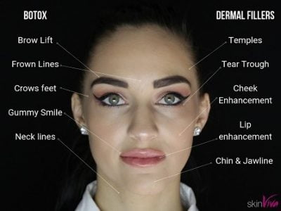 Difference between Botox & Fillers